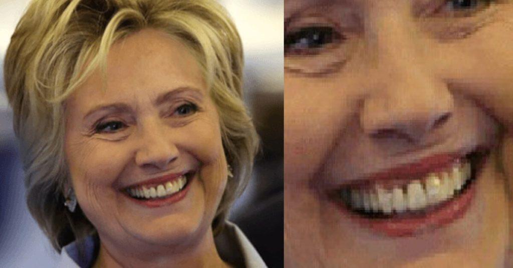 hillary-teeth